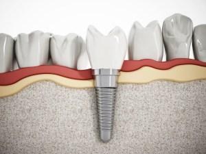 Representation of dental implant