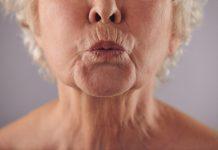 Botox Idade ideal e outras dúvidas