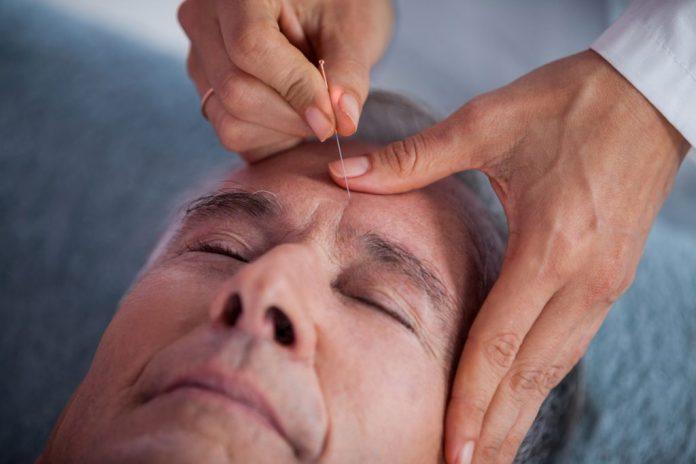 10 benefícios da acupuntura para a terceira idade