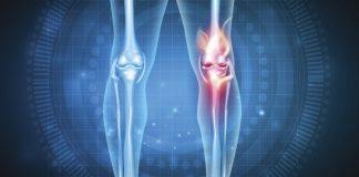 Dieta para tratar Artrite e Artrose
