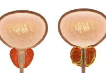 Câncer de Próstata – Sintomas e como prevenir
