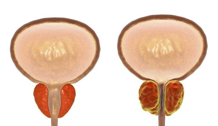 Câncer de Próstata: Tudo que preciso saber