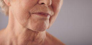 Sinais de falta de colágeno no organismo