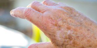 Tremor nas mãos nem sempre é sinal de Parkinson