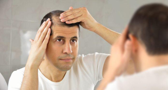 Pantogar - Medicamento para queda de cabelo – Funciona?