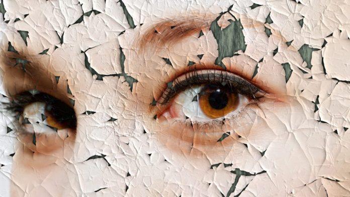 Pele ressecada: Causas, fatores de risco e prevenção