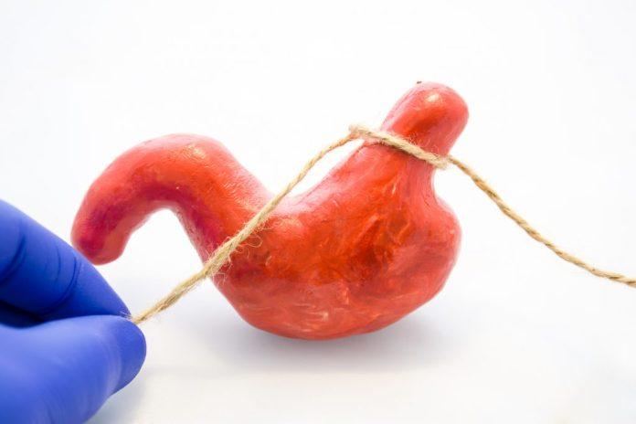 Cirurgia bariátrica – Conheça os 4 tipos