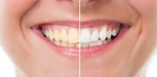Clareamento dental – 4 procedimentos mais conhecidos
