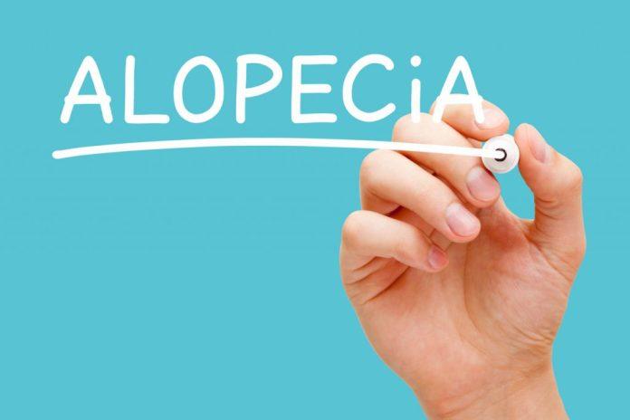 Alopecia – Tipos e tratamentos naturais