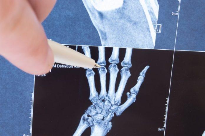 Soluções caseiras para o Reumatismo