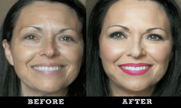 kandee mom before after