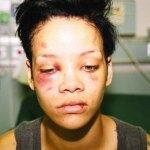 Violenza sulle donne: le celebrità vittime di abusi
