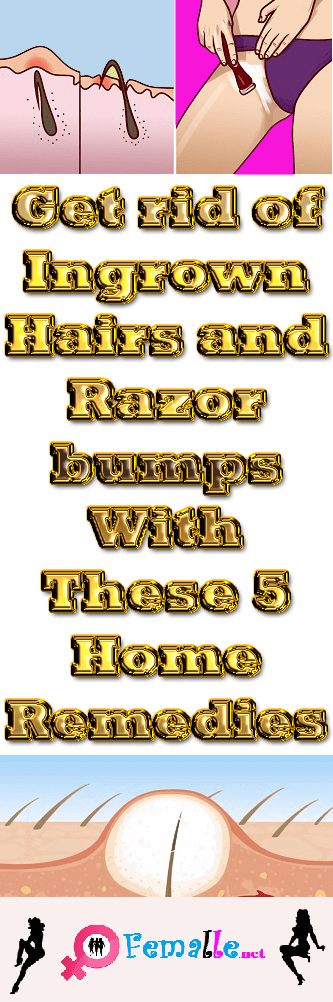 Get rid of Ingrown Hairs and Razor bumps With These 5 Home Remedies!
