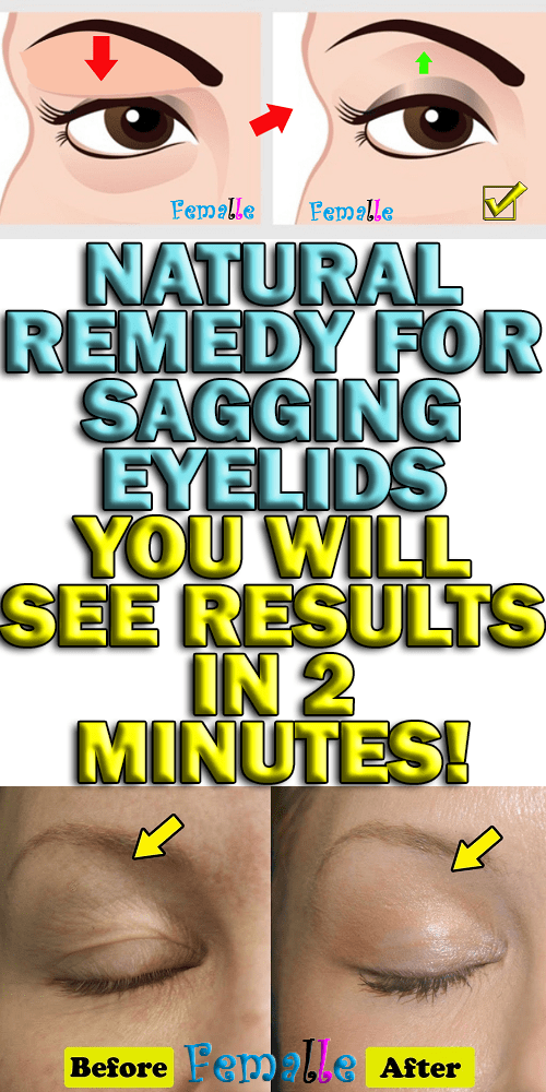 Natural Remedy for Sagging Eyelids – You Will See Results in 2 Minutes!