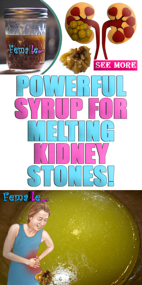 Powerful Syrup For Melting Kidney Stones