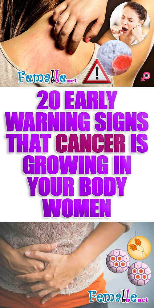 20 Early Warning Signs That Cancer is Growing in Your BODY women