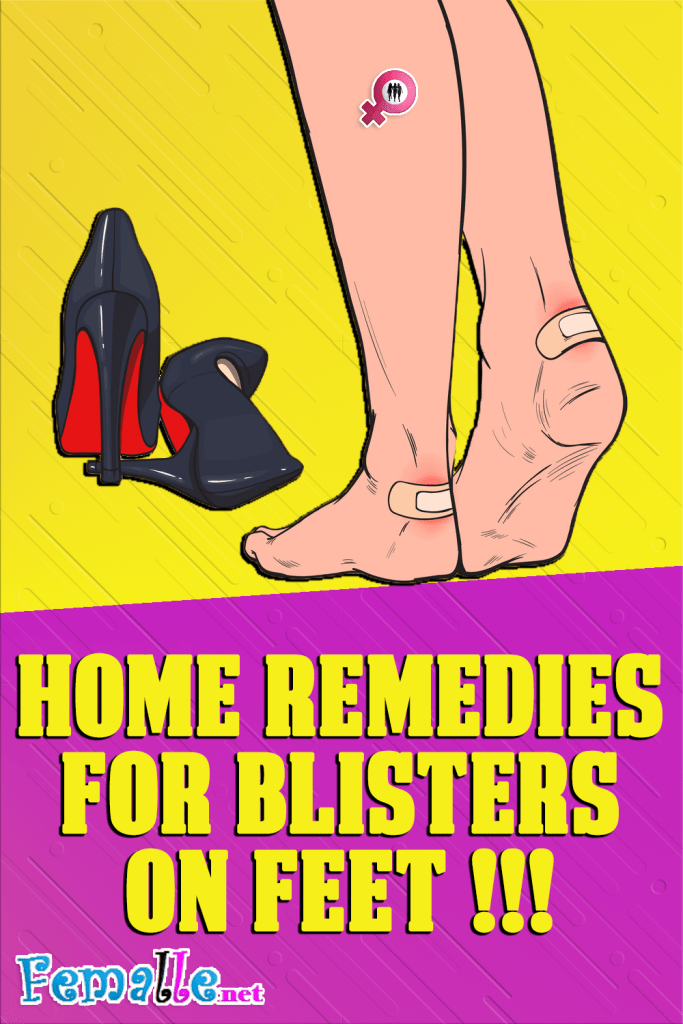 Home remedies for blisters on feet