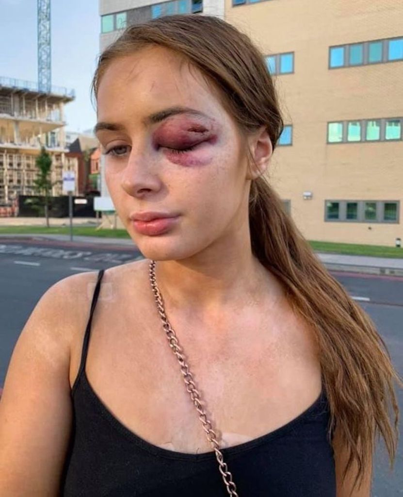woman attacked for saying no