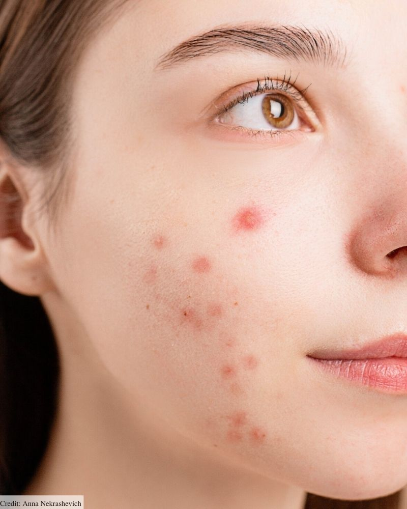 best affordable pimple patches