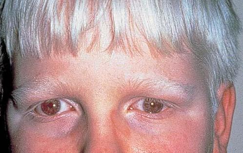 albinismo oculo