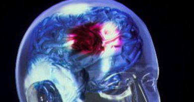 lesiones cerebrovascular