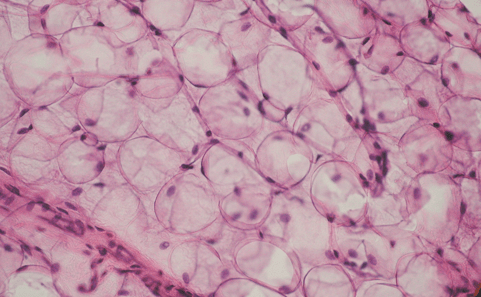 tejido adiposo