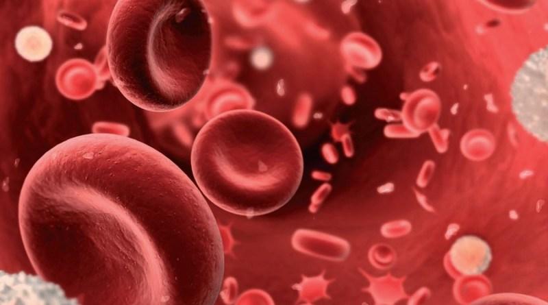 anemia deficiencia de hierro