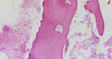 artritis piogena