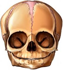 branquicefalia, osteocraneoestenosis