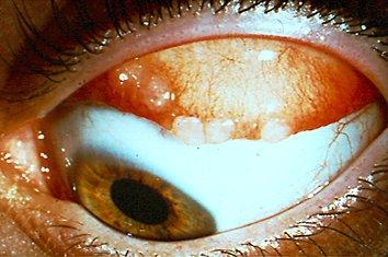 queratoconjuntivitis