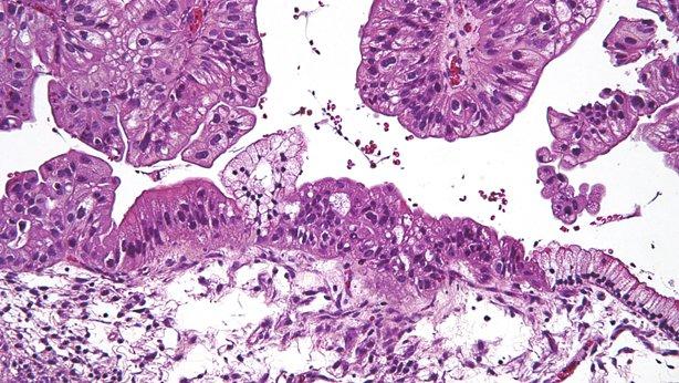 carcinoma peritoneal