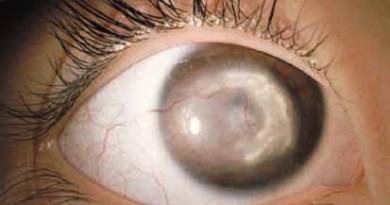 opacidad en la cornea