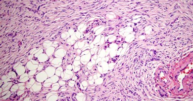 dermatofibrosarcoma protuberante