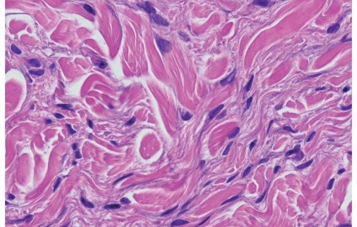 fibrosis sistematica