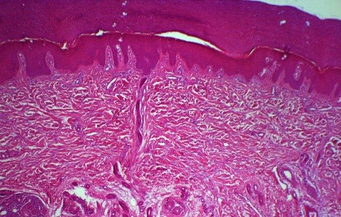 fibromatosis hialina