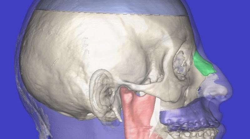 esqueleto facial