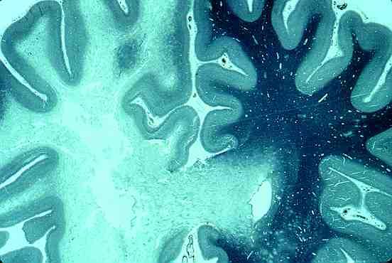 leucoencefalopatia