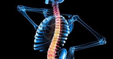 mielitis transversa aguda (MTA) secundaria