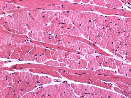 Miopatía congénita central core