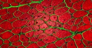 miopatía nemalínica congénita grave