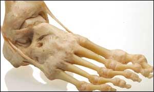 osteocondritis de hueso tarsiano