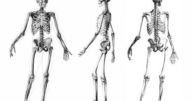 Osteocondritis disecante familiar