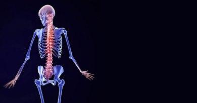Osteopetrosis de Albers-Schönberg