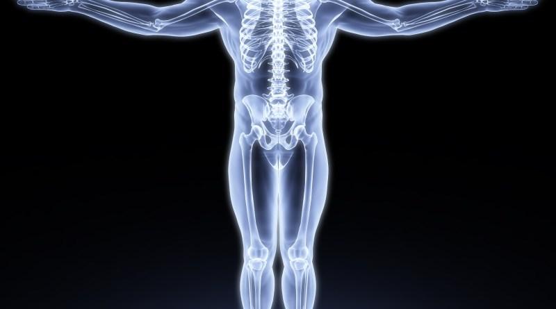 Síndrome de osteoporosis - hipopigmentación oculocutánea