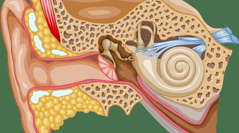 pérdida auditiva neurosensorial progresiva