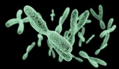 Trastornos del desarrollo sexual con cariotipo 46,XY por deficiencia de 17-beta-hidroxiesteroide deshidrogenasa