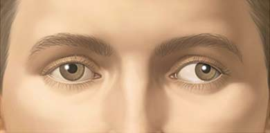 Síndrome de Bosley-Salih-Aloainy