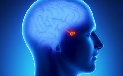Síndrome de Cushing por secreción ectópica de ACTH