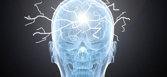 Síndrome de alopecia-epilepsia-piorrea-discapacidad intelectual