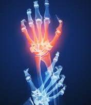 Síndrome de dolor regional complejo tipo 1